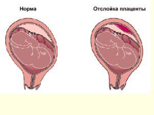 Небольшая отслойка плаценты на ранних сроках беременности форум