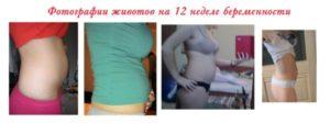 Болит живот 12 недель