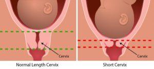 Беременность низко шейка матки