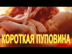 Короткая пуповина при родах причины и последствия