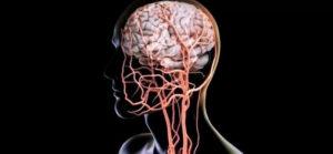 Тонус сосудов головного мозга