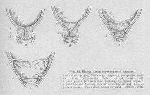 Шейка матки меньше 1 см когда роды
