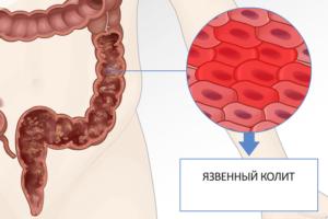 Язвенный колит кишечника у грудничка