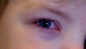 У ребенка слезится глаз и красный