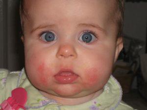 Почему у младенца щеки красные