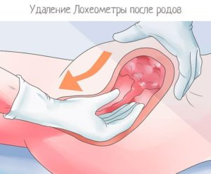 Чистка после родов от сгустков