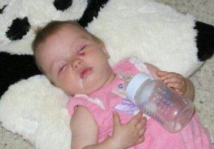 Если ребенок сильно срыгивает фонтаном