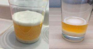 Как с помощью мочи и соды определить беременность