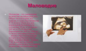 Маловодие при беременности причины 30 недель