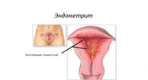 Воспаление матки после родов симптомы и лечение