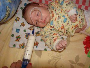 Кормление через зонд новорожденного