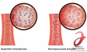 Gardnerella vaginalis при беременности