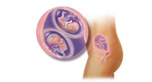 13 неделя беременности двойня