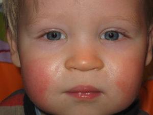 Почему красные щечки у ребенка