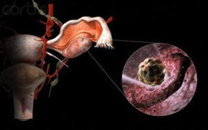Могут ли быть боли при оплодотворении яйцеклетки