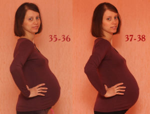 Беременность 37 недель болит поясница