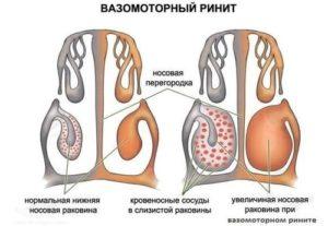 Вазомоторный ринит при беременности