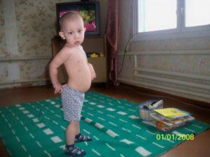 Почему у ребенка большой живот
