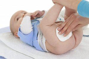 Чем протирать у новорожденного складки