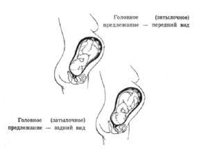 Предлежание плода головное 2 позиция передний вид