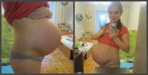 37 неделя беременности болит лобок