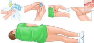 Как поставить свечку глицериновую ребенку