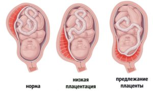 Форум низкое расположение плаценты при беременности 20 недель