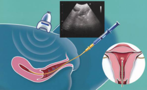 На какой день после переноса эмбриона делают узи