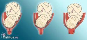39 недель раскрытие 2 пальца когда роды