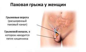 Боль в паху справа у женщины при беременности
