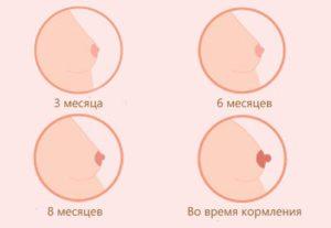 Когда начинает грудь набухать при беременности