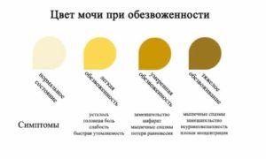 Моча у ребенка темно желтая