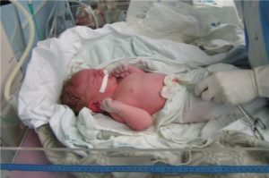 Ребенок наглотался околоплодных вод и лежит в реанимации