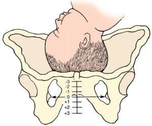 Лобковые кости болят при беременности