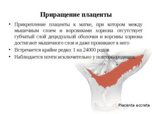 Приросшая к матке плацента