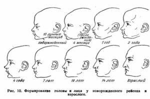 Форма головы у новорожденных норма
