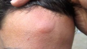 Почему образуется шишка после удара