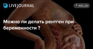 Влияет ли рентген на зачатие для женщин