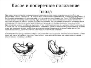 Поперечное положение плода на 33 неделе беременности