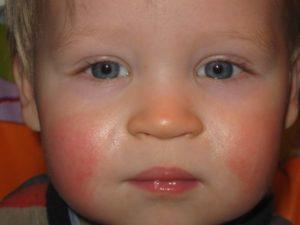 Ребенка красные щеки после улицы у