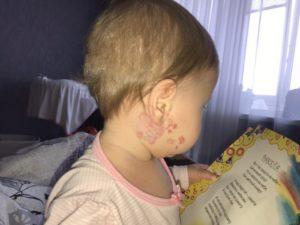 У ребенка гемангиома на плече