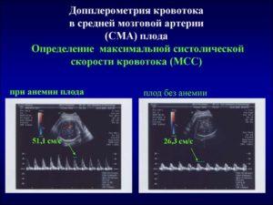Средняя мозговая артерия плода