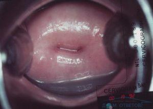 Красная шейка матки при беременности