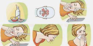 Как правильно промывать нос детям физраствором