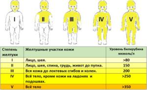 Сколько длится желтушка у новорожденных
