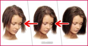 Что делать если у кормящей мамы выпадают волосы