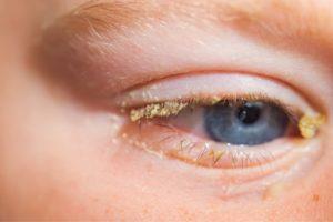 Корочки у ребенка на глазах