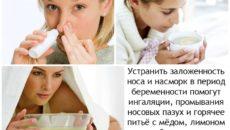 Как избавиться от насморка беременной в домашних условиях