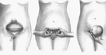 Через какое время сокращается матка после кесарева сечения