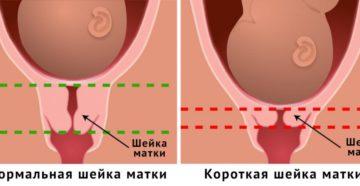 Мягкая шейка матки при беременности 30 недель причины